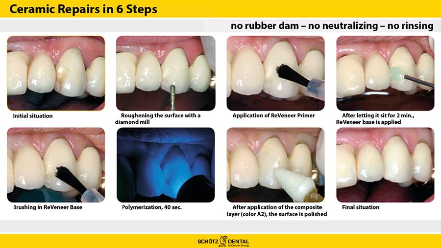 Ceramic-Repairs-in-8-Steps5b62a918d8a93