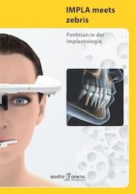 Funktion in der Implantologie (Deutsch)