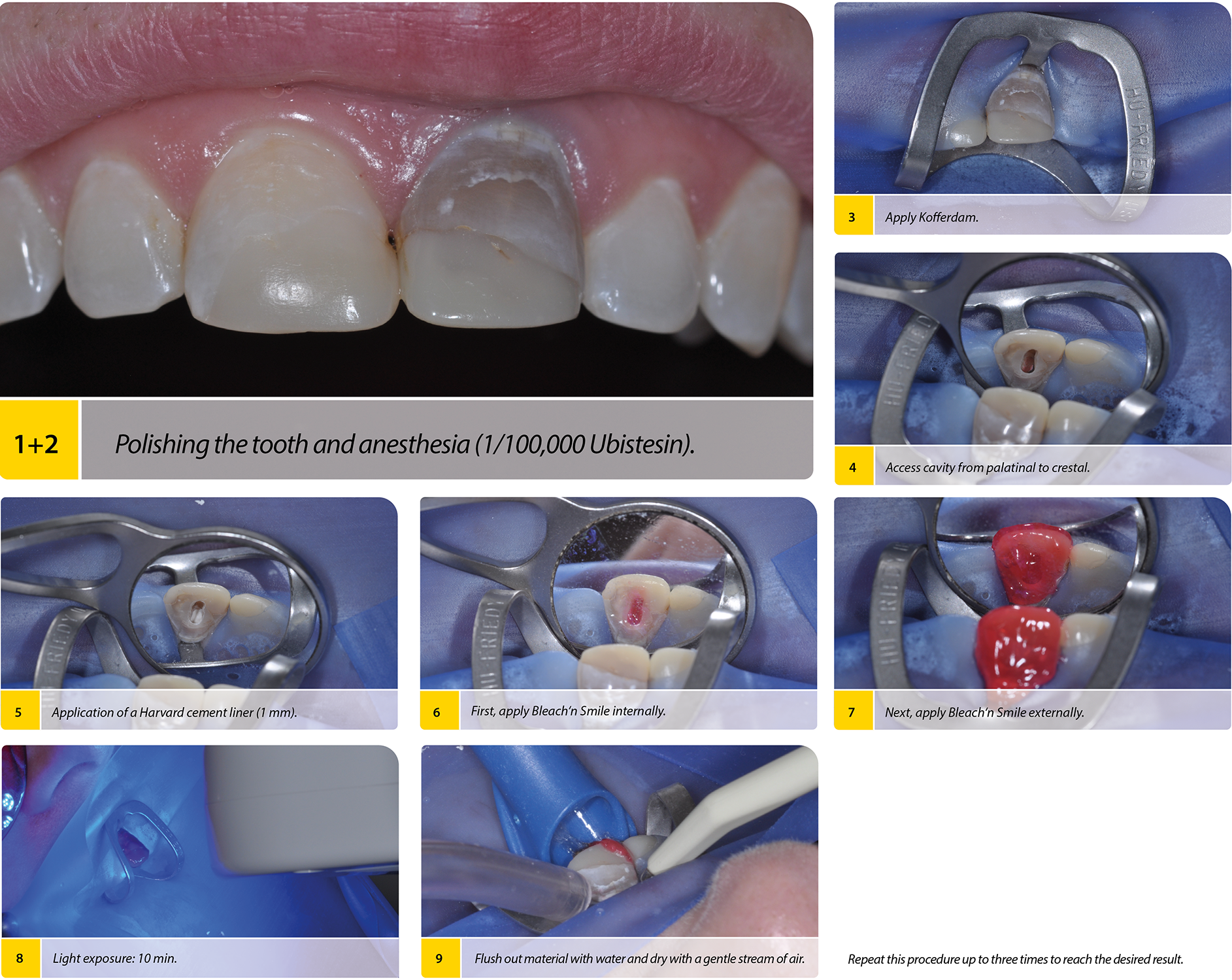 2020-03_Endo-Bleaching-Step-by-Step_ENG