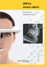 Function in Implantology (English)