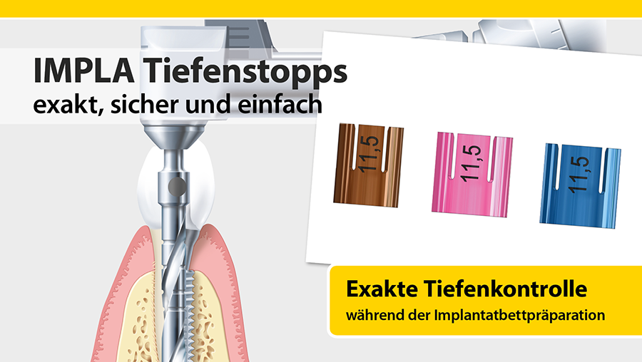 IMPLA_Tiefenstopps