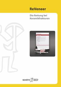 ReVeneer (Deutsch)