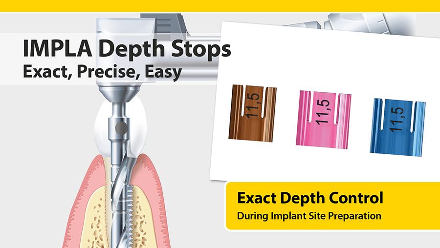 IMPLA_depth-stops2